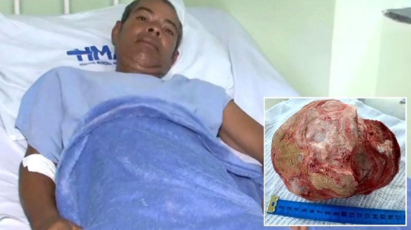 Chapada: Lavrador que teve pedra de 1,3 kg e 18 cm retirada da bexiga em Jacobina agradece a Deus por estar vivo