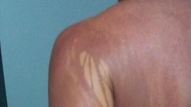 Photo of #Bahia: Com laudo inconclusivo, turista mineiro com manchas no corpo após banho de mar recebe alta