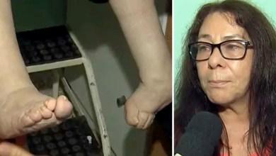 """Photo of Chapada: Mulher de Seabra com pé torto e que calçou sapato pela primeira vez em 50 anos luta por cirurgia: """"Sofrendo muito"""""""