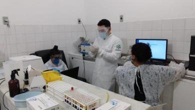 Photo of #Chapada: Lençóis tem mais 10 casos positivos de covid em 24h e município registra total de 55 contaminados