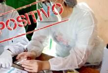 Photo of #Chapada: Lençóis testa profissionais ligados ao turismo e 11 casos de covid-19 são registrados