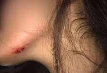 Photo of #Chapada: Jovem de Iaçu agredida pelo ex-namorado com paralelepípedo consegue medida protetiva da Justiça
