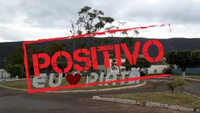 Photo of #Chapada: Número de óbitos por complicações da covid-19 sobe para 19 em Piatã; são 35 casos ativos da doença