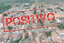 Photo of #Chapada: Nova Redenção registra sete novos casos de covid e inicia vacinação para pessoas com comorbidades