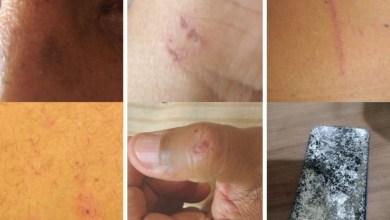 Photo of #Bahia: Jornalista denuncia agressão sofrida enquanto filmava guerra de espadas no município de Cruz das Almas