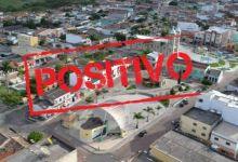 Photo of #Chapada: Mulher de 38 anos é a vigésima oitava vítima fatal da covid-19 em Barra da Estiva
