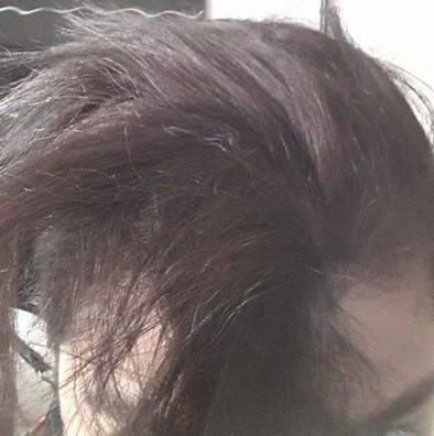 cabelo-queimado-alisamento