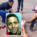 Morre adolescente que colidiu com avião e teve perna e braço amputados