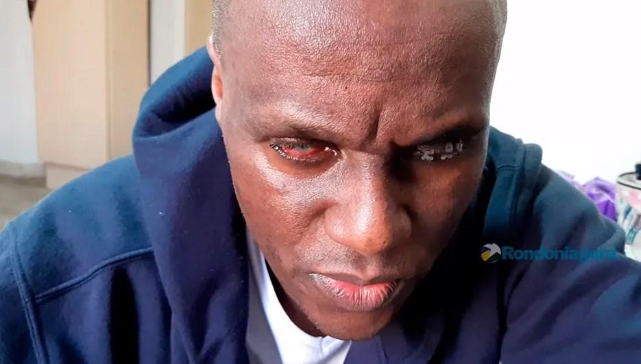 Médico atacado por agente penitenciário está cego e diz ter medo de voltar a Rondônia e ser morto; Vídeo