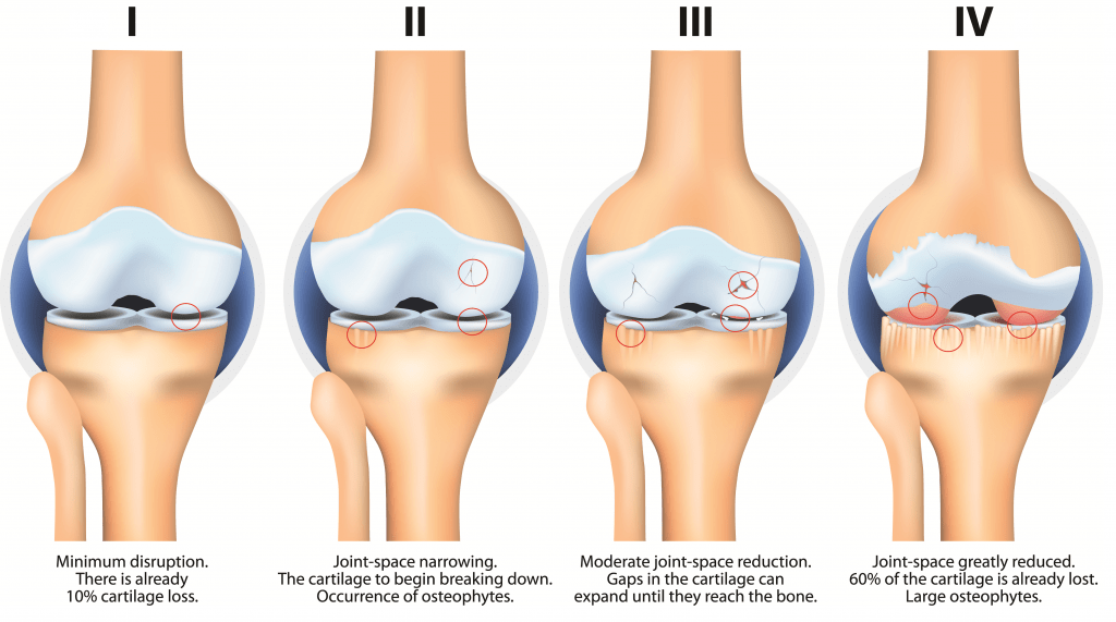 Osteoarthritis Condition