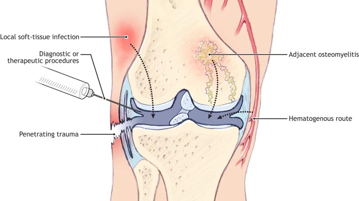 Acute Septic Arthritis in Patients