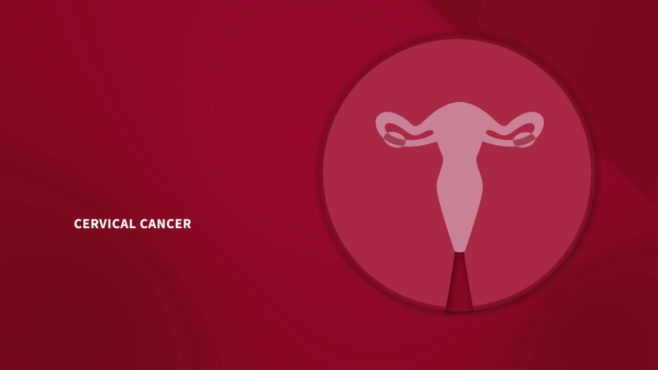 How You Know If You Have Cervical Cancer