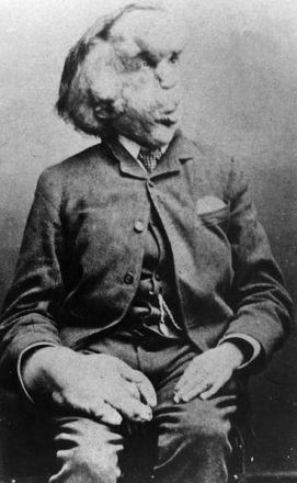 Portrait of Joseph Merrick
