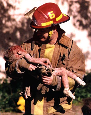 fireman with injured baby