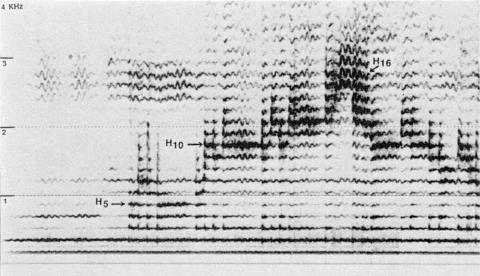 Fig. 27: Rajasthan. Enregistrement J. Levy. Phonothèque du Musée de l'Homme BM78.2.1.