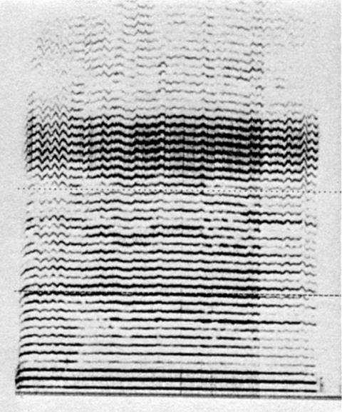 Fig. 32: Même signal que fig. 30.