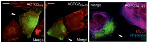 Cells that express ACTG2R148S (middle panel) have less-pronounced actomyosin structures, comared with normal ACTG2 (ACTG2WT, left panel), detected by staining with a myosin II antibody. Loss of contractile structures in ACTG2R148S-expressing cells, visualized by myosin II and phalloidin staining (right panel). Arrowheads indicate the ACTG2WT- and ACTG2R148S-expressing cells