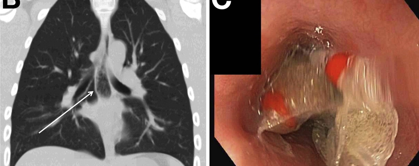 What is the Best Way to Remove a Bag of Methamphetamine From the Esophagus?