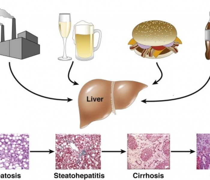 What Causes Different Types of Fatty Liver Disease?