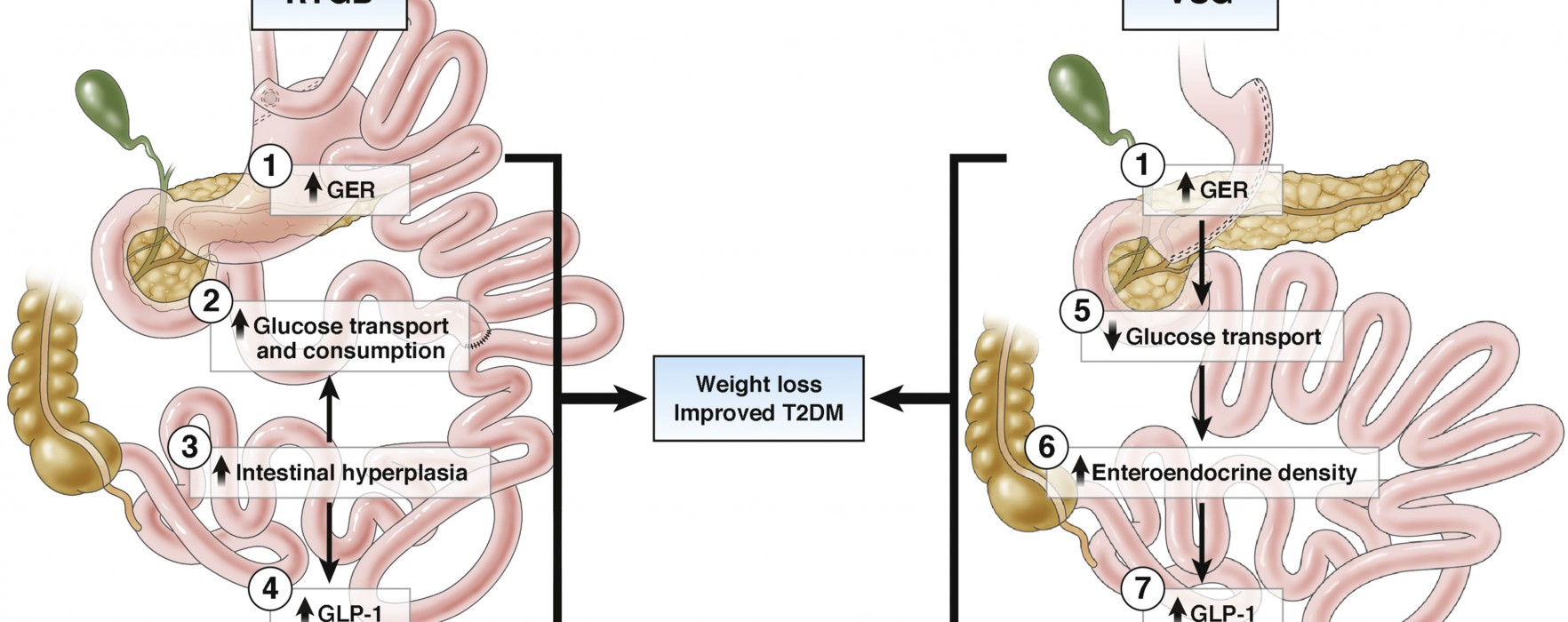 What Changes Occur in the Intestine After Gastric Bypass vs Vertical Sleeve Gastrectomy ?