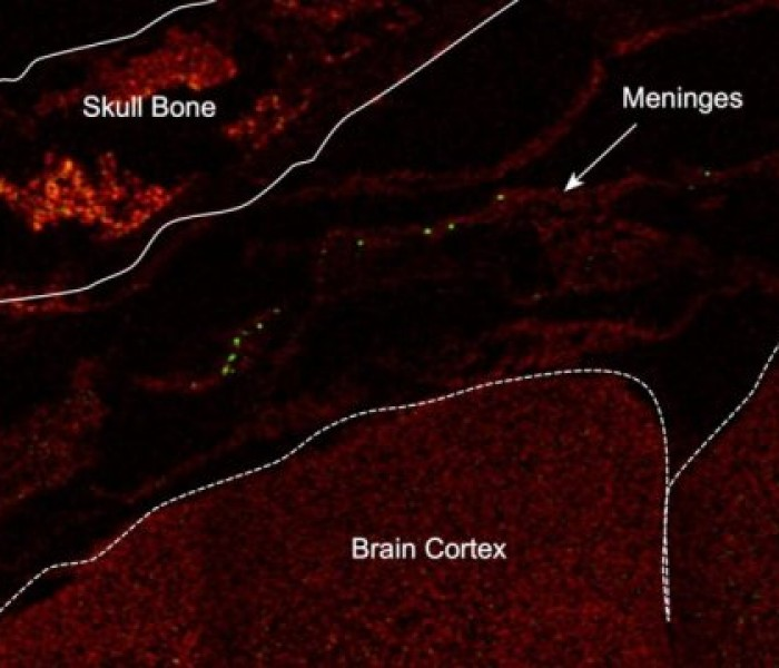 Gut Microbes Affect Extent of Brain Injury After Stroke