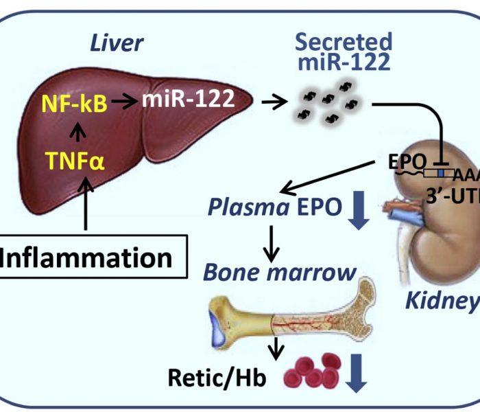 How Does Inflammation Lead to Anemia?