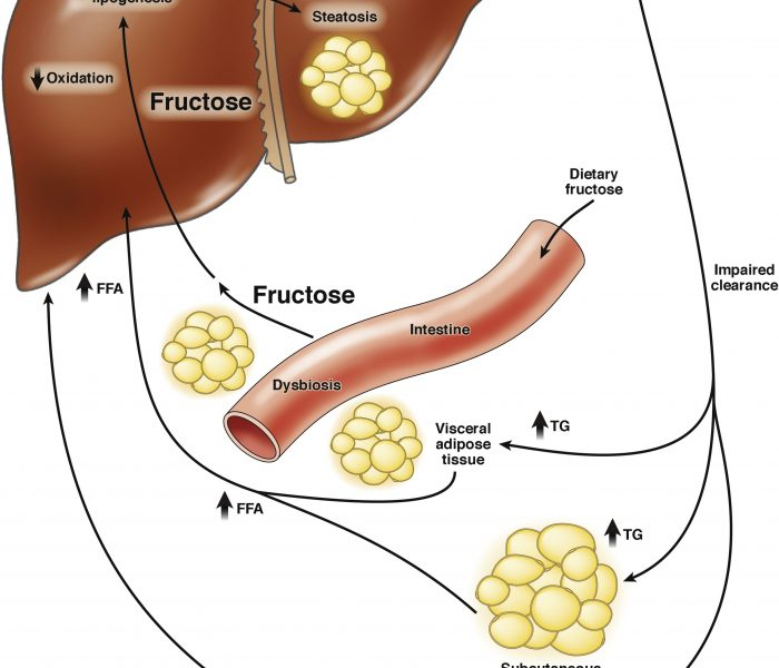 Can Restricting Fructose Intake Reduce Fatty Liver Disease in Children?