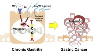 H pylori infection and inflammatory signals, such as TNF, induce aberrant expression of a DNA-mutator enzyme, AID, in gastric epithelial cells. AID-mediated mutagenesis of specific genes, including TP53 could, contribute to gastric carcinogenesis.