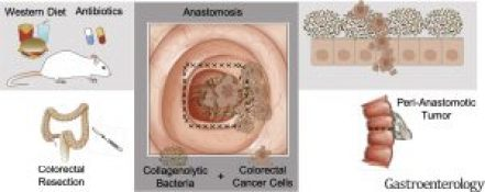 How Do Diet And Antibiotic Use Affect Risk Of Colorectal Tumor Recurrence Aga Journals Blog
