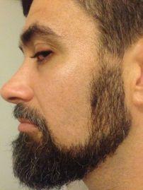 Beard from side.