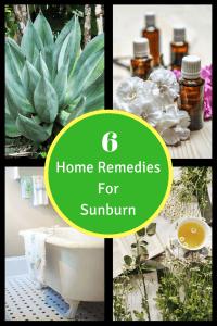 sunburn remedies
