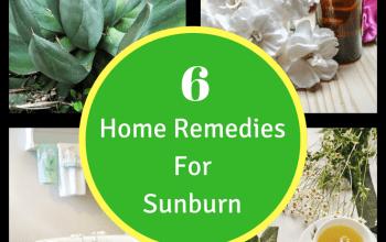 Sunburn Remedies: 6 Ways To Take The Sting Away