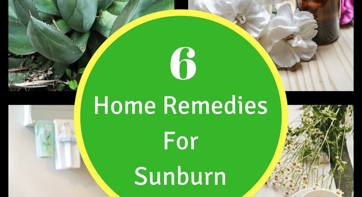 Sunburn Remedies: 6 Ways To Take The Sting Away