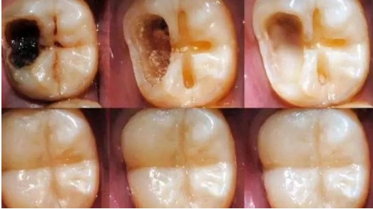 How to cure tooth pains, using these tricks without Dentist