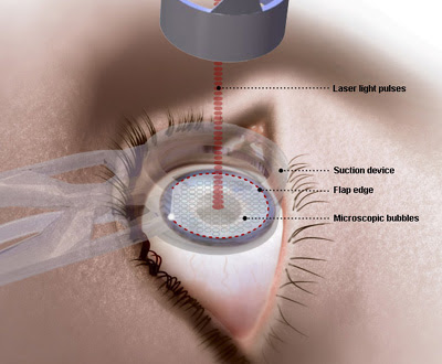 Joveline's Lasik Eye Surgery (4/6)