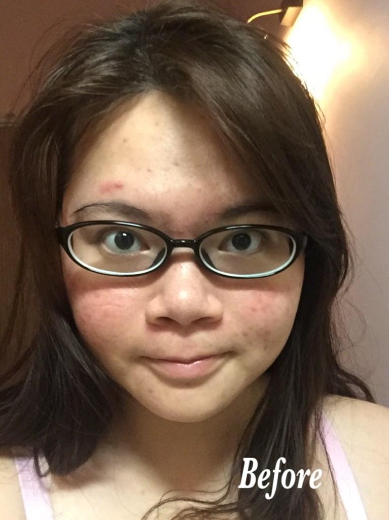 bsoul facial 10