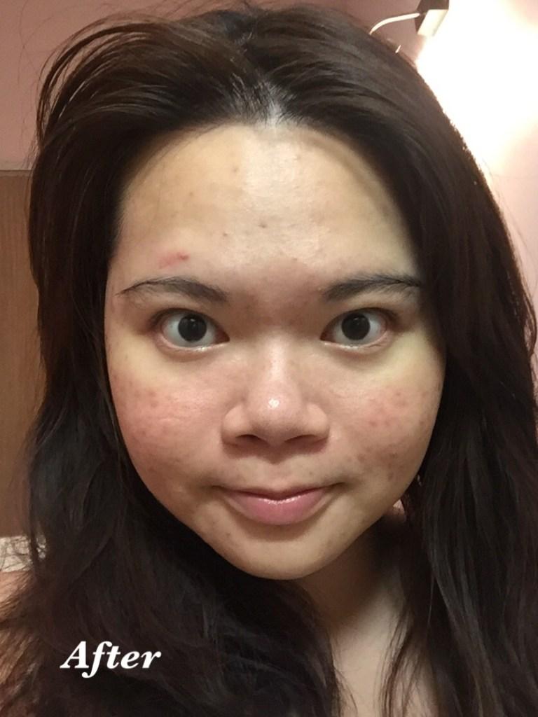 bsoul facial 10 after