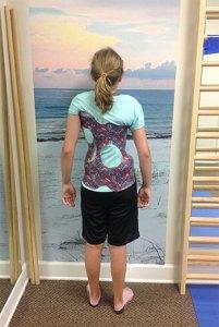 Child shown in scoliosis brace