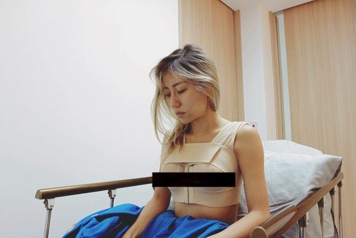 Allure Plastic Surgery Singapore - Breast Augmentation Mentor Impants- Dr Samuel Ho (22)