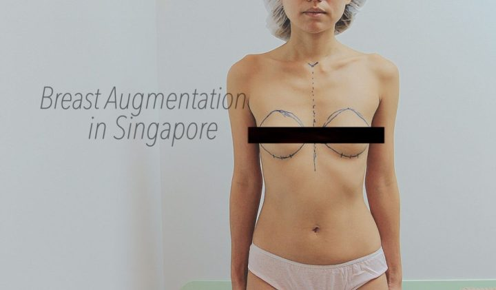 Breast Augmentation in Singapore