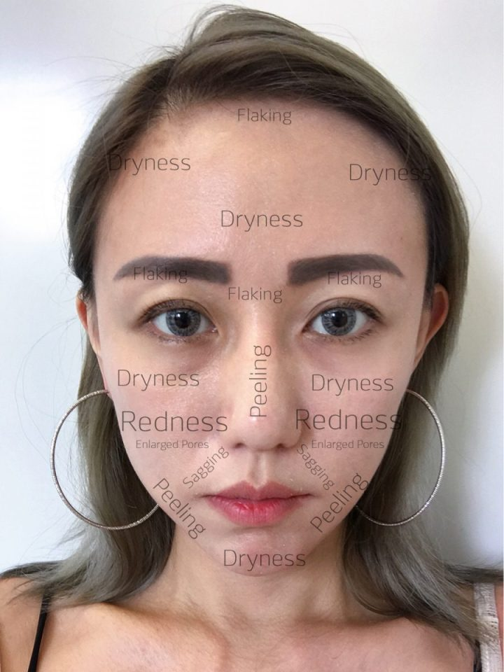 Rejuran-Veritas Medical Aesthetics-Jpglicious (1)