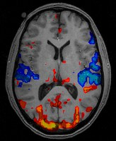 Dexter y la psicopatía Fmri_scan10