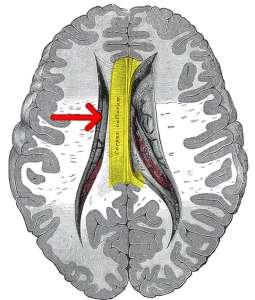 corpus-callosum-schizophrenia-public