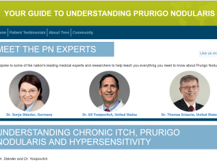 Your guide to understanding Prurigo Nodularis