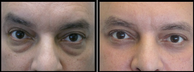 lower eyelids blepharoplasty