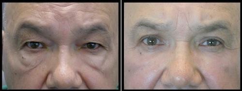 4 upper lower lids blepharoplasty-003
