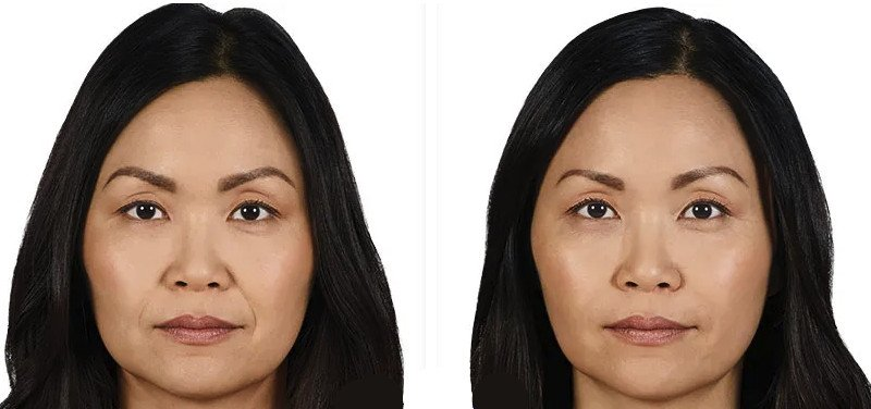 Juvederm Ultra plus XC patient 1