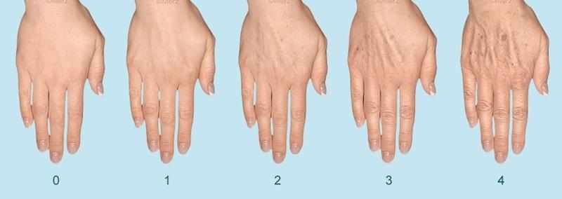 radiesse hands ageing