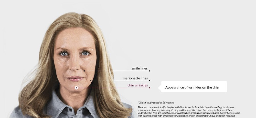 what is sculptra aesthetic