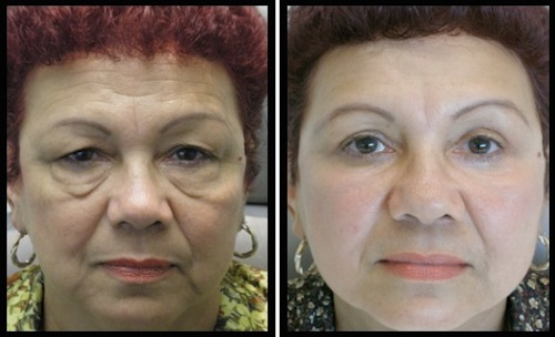upper and lower eyelids blepharoplasty before and after female patient image with huge difference